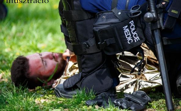 Felakasztotta magát, a rendőrök újraélesztették