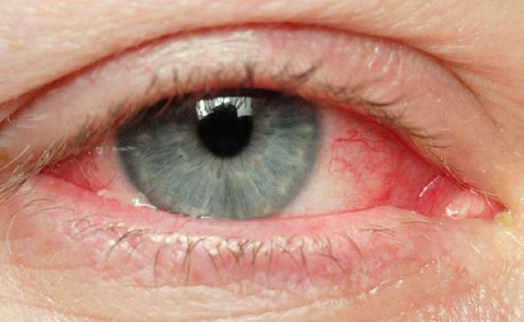 Hónapok óta hiánycikk az egyetlen tb-támogatott allergia elleni szemcsepp